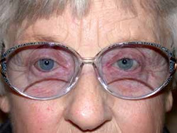 Artificial eye with glasses