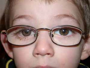 Artificial eye with glasses on